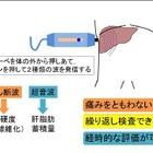 肥満児は肝硬変に高リスク…大阪市立大 画像