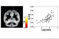 「幸福とは何か?」幸福感と脳の関係、京大研究グループが解明