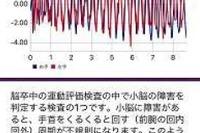 国内初、慶應大がApple WatchとiPhoneアプリで不整脈・脳梗塞を発見 画像