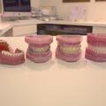 歯列矯正器具の種類
